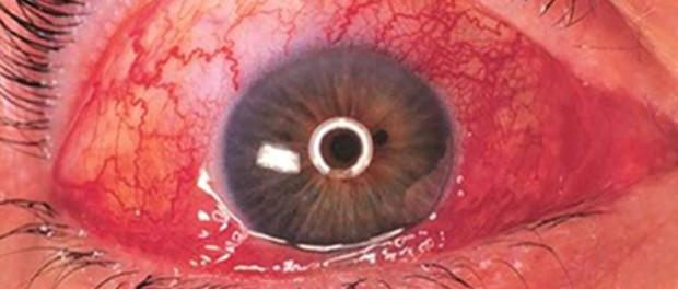 eye-congestion-620x264